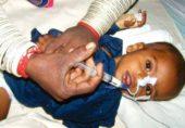 تھرمیں غذائی قلت اوروبائی امراض سے مزید تین بچے دم توڑگئے