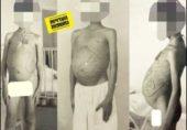 اسرائیلی ڈاکٹروں نے ایک ہزار مسلمان بچوں کو تجربات کی بھینٹ چڑھا دیا