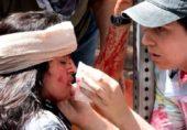 امریکہ میں نسلی فسادات میں ایک خاتون ہلاک اور 19 افراد زخمی