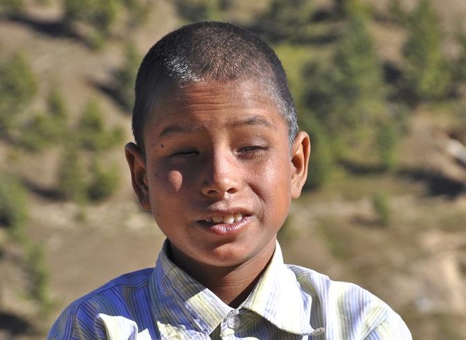 پیدائشی اندھے پن کی دوا دریافت: قیمت سوا چار کروڑ روپے