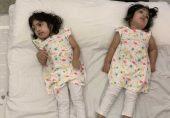 سر جڑی پاکستانی بہنیں صفا اور مروہ کامیاب آپریشن کے بعد وطن واپس آ گئیں