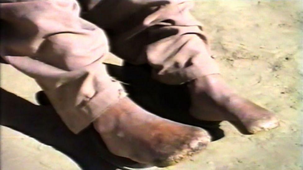 مہدی کے پاؤں کی انگلیاں گل سڑ چکی تھیں اور گینگرین مزید پھیلنے کا خدشہ تھا۔ ایسے میں ڈاکٹروں کے پاس اور کوئی چارہ نہ تھا اور ان کے پیروں کی تمام انگلیاں کاٹ دی گئیں۔